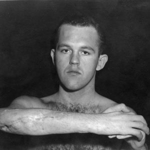 Henry Segerstrom shows wound